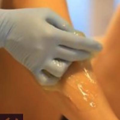 body sugaring behandeling van onderbeen