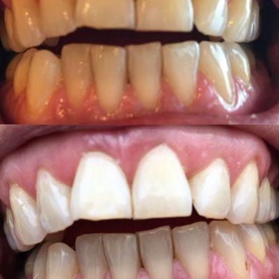 Voor en na foto van tanden bleken